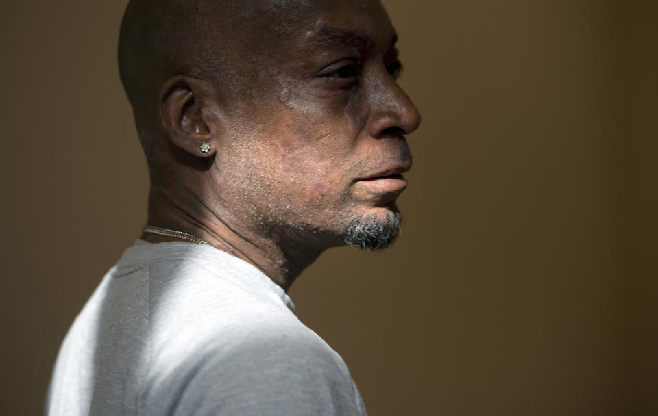Plaintiff Dewayne Johnson looks on after hearing the verdict in his case against Monsanto at the Superior Court of California in San Francisco on Friday, Aug. 10, 2018. A San Francisco jury on Friday ordered agribusiness giant Monsanto to pay $289 million to the former school groundskeeper dying of cancer, saying the company's popular Roundup weed killer contributed to his disease. (Josh Edelson/Pool Photo via AP)