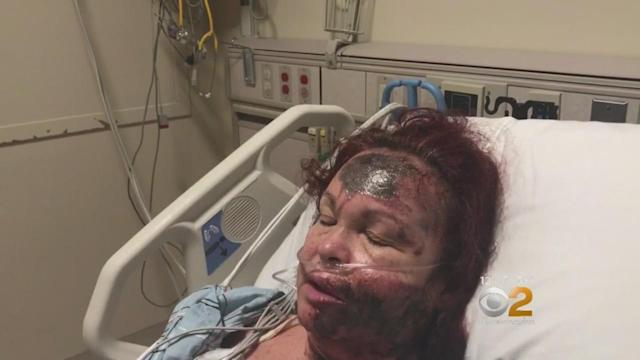 Police say Lizzie Dunn recanted her story after telling police a stranger sprayed her in the face with a harmful substance. (Photo: CBS2).