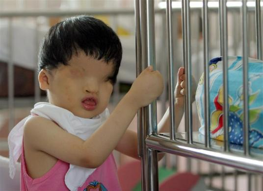 Vietnamese defoliant Agent Orange Victim Tran Huynh Thuong Sinh, 4, is seen at the Peace Village in Ho Chi Minh city, September 15, 2006.