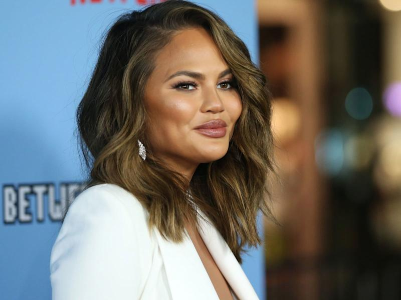 Chrissy Teigen Is Producing a Documentary About French Fries