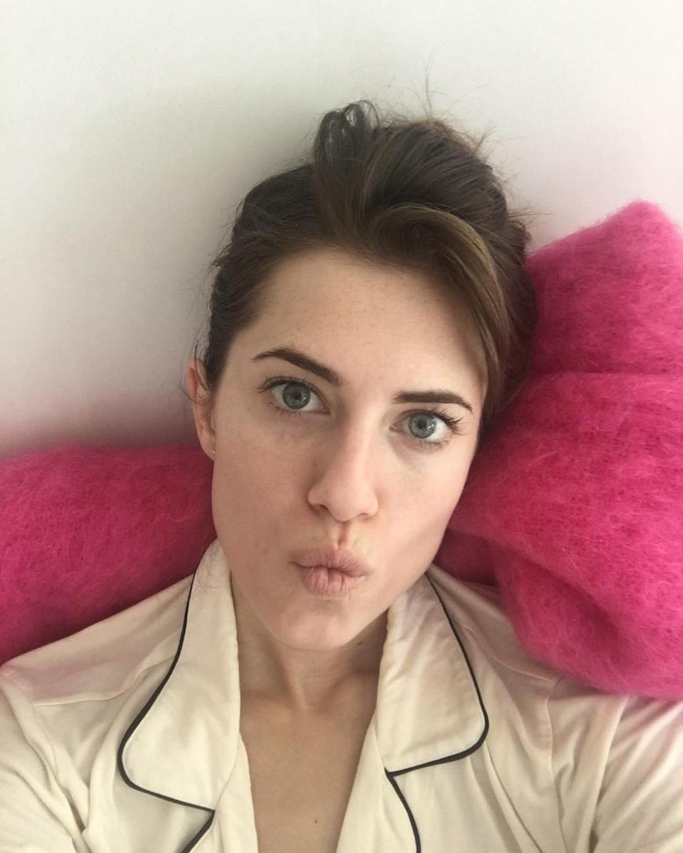 """A year before <a href=""""http://www.glamour.com/story/allison-williams-platinum-blond-hair?mbid=synd_yahoo_rss"""" rel=""""nofollow noopener"""" target=""""_blank"""" data-ylk=""""slk:going blond"""" class=""""link rapid-noclick-resp"""">going blond</a>, Allison posted this """"no-filter no-FaceTune no-plastic surgeried"""" photo on her 28th birthday. <em>Au naturel</em> birthday selfies might be our new favorite Instagram trend."""