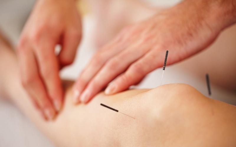 Alternative treatments could do more harm than good – but activities such as acupuncture may help to manage the stress caused by illness - Getty Images Contributor