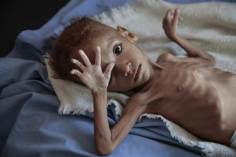 FILE - In this Oct. 1, 2018, file, photo, a severely malnourished boy rests on a hospital bed at the Aslam Health Center, Hajjah, Yemen. An estimated 85,000 children under age 5 may have died of hunger and disease since the outbreak of Yemen's civil war in 2015, an international aid group said Wednesday, Nov. 21, 2018. (AP Photo/Hani Mohammed, File)