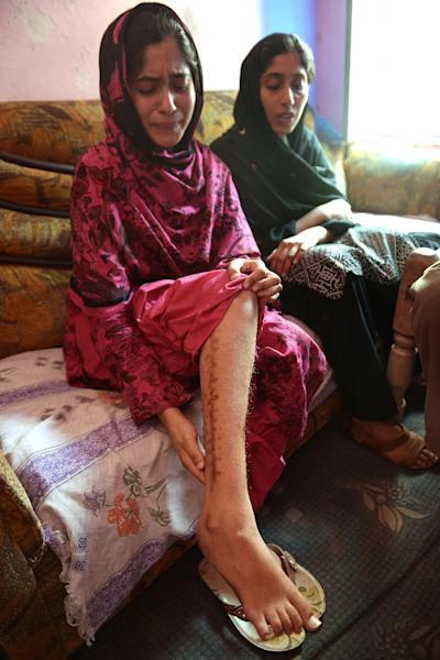 Zunera (L) was shot three times when she tried to escape her sex trafficking ordeal in Dubai, she is shown here during an interview with AFP in Faisalabad on May 8, 2014 (AFP Photo/Farooq Naeem)