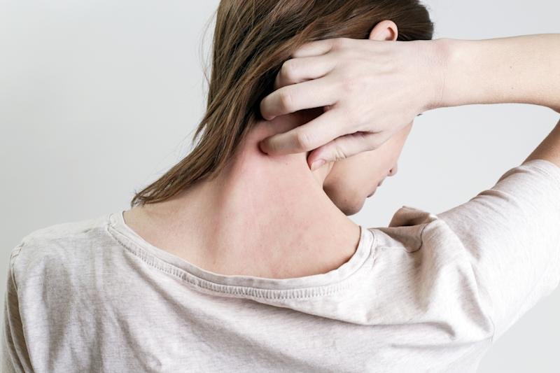 Why are cases of female eczema on the rise? [Photo: Getty]