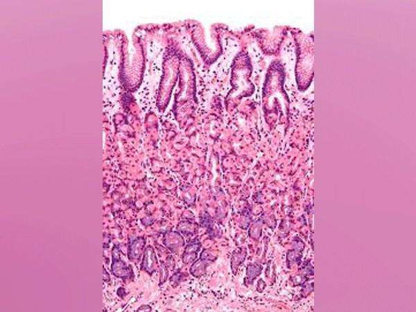 Microscopic view of gastrointestinal wall