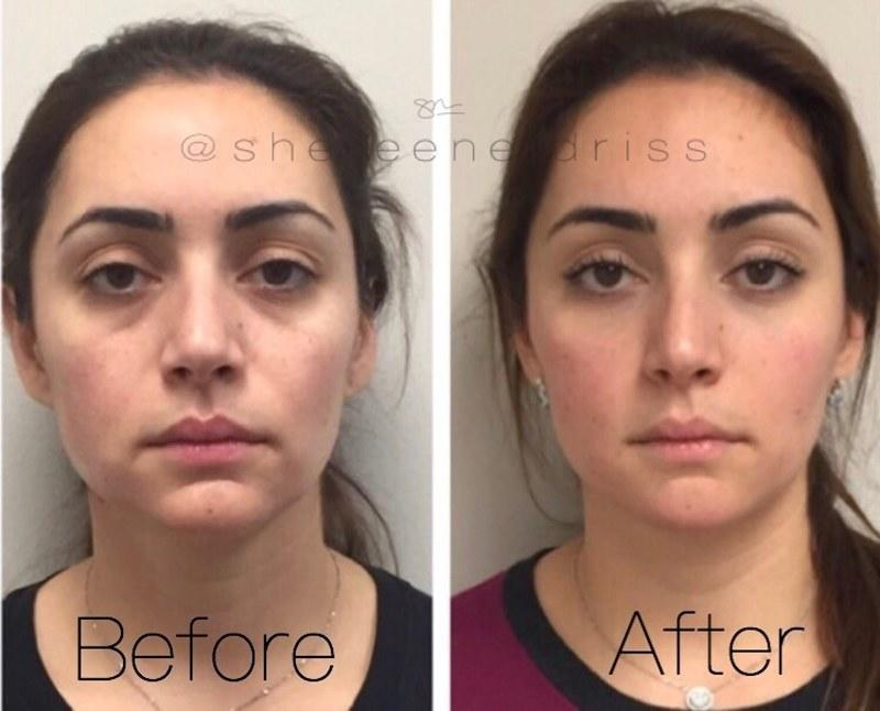 The Complete Guide to Facial Fillers