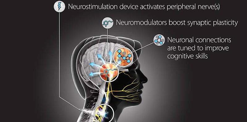 DARPA Wants to Hack Your Nervous System to Turn You Into a Super-Spy