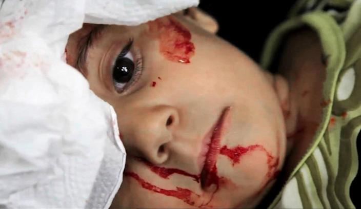 This image taken from video filmed by an independent cameraman and made available on Monday, Sept. 3, 2012 shows a Syrian wounded child at the Dar al-Shifa hospital, in Aleppo, Syria. Grief stricken parents tried desperately to calm their injured children as the doctors at the Dar al-Shifa hospital struggled to treat an influx of injured in a mortar attack. Local residents say the attack was launched by Syrian government forces onto a densely populated area of the city on Monday. (AP Photo/APTN)