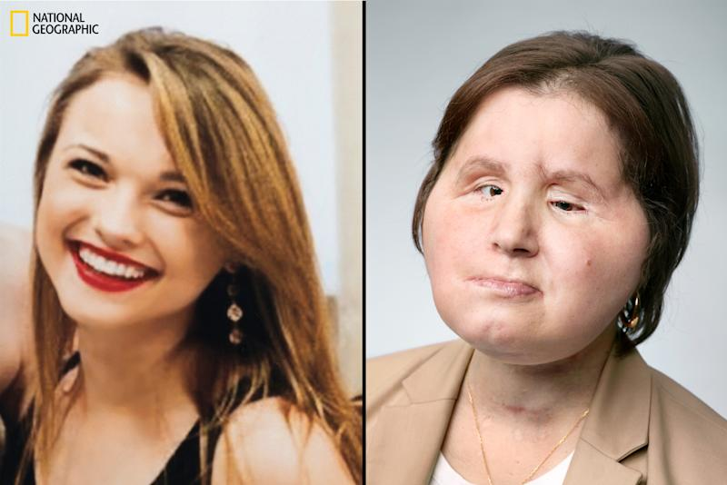 'You Have a New Identity.' Patients Share What It's Like to Recover From a Face Transplant