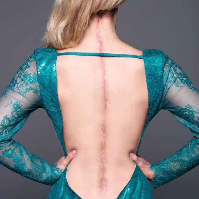 Victoria Graham has Ehlers-Danlos Syndrome — a rarely diagnosed genetic condition that affects connective tissue in the skin, joints, and blood vessels. (Photo: AllyKat Photography)