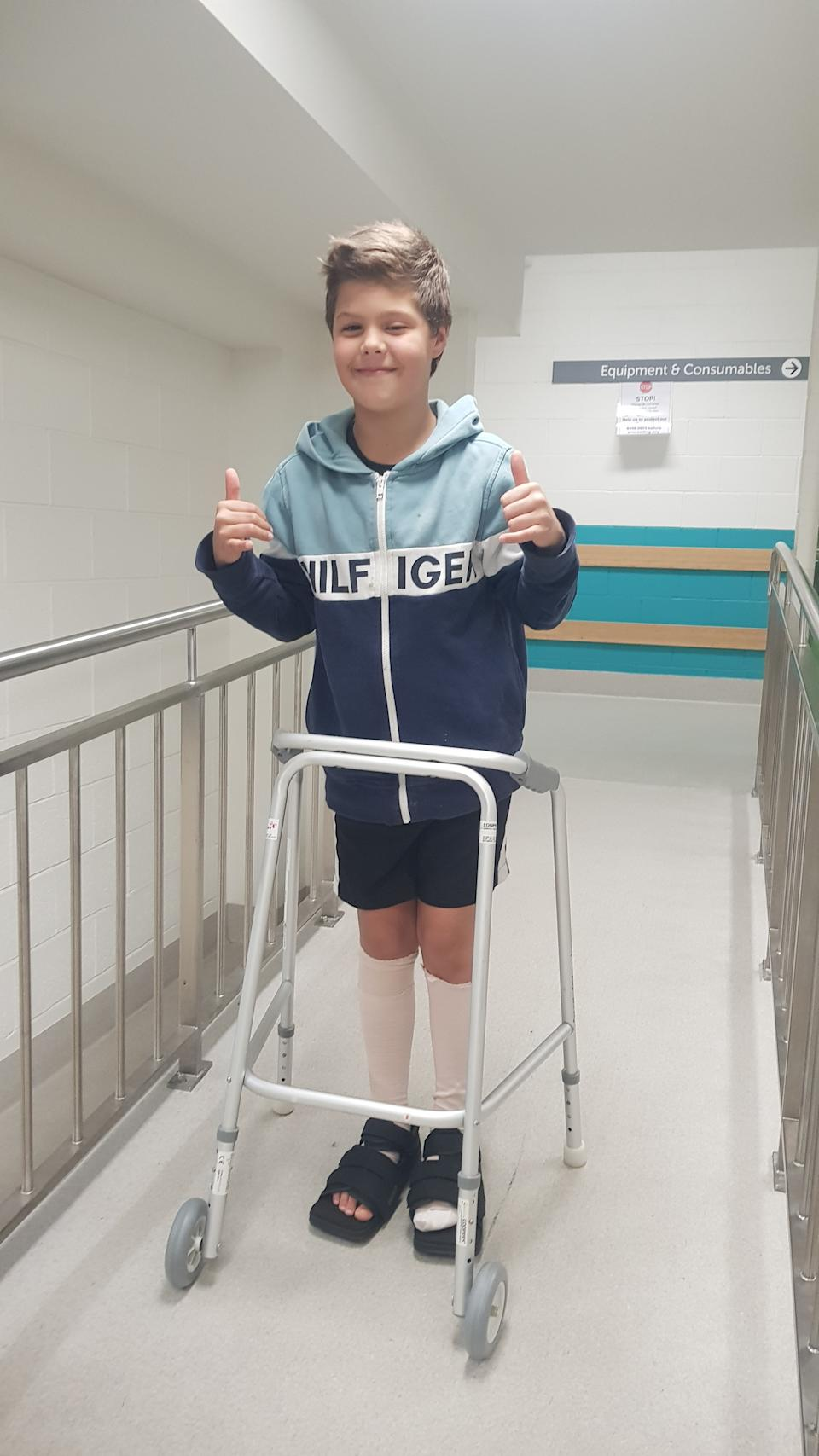 A photo of Liam Rogers walking after surgery for his burned feet.