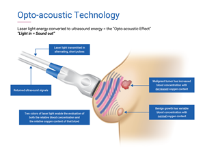 Seno Medical & # x002019; s Imagio & # xae;  The breast imaging system uses non-invasive opto-acoustic ultrasound (OA / US) technology to provide information about suspicious breast lesions in real time, helping providers characterize and differentiate masses that may or may not. require a more invasive diagnostic evaluation.