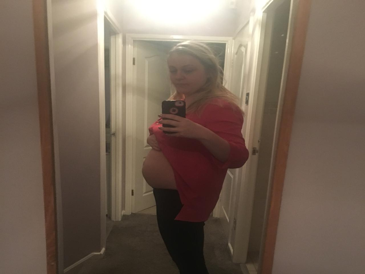 A personal image that shows the bloating she endured