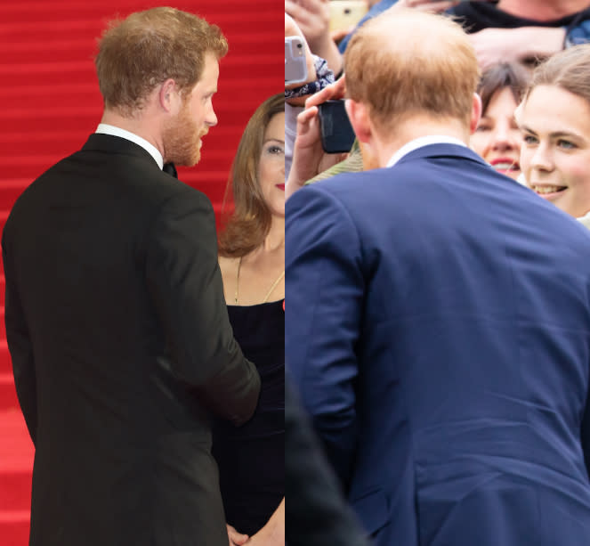 A leading hair loss expert has said Prince Harry's hair loss has exacerbated over the last year, seen here at the Invictus games in 2017 and in Australia last month [Photo: Rex/Shuttershock]