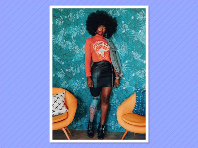 """<p>Having just scored a """"Teen Vogue"""" cover, <a href=""""https://www.instagram.com/mamacaxx/?hl=en"""" rel=""""nofollow noopener"""" target=""""_blank"""" data-ylk=""""slk:Cax"""" class=""""link rapid-noclick-resp"""">Cax</a> is a super fashionable blogger, model, amputee and overall inspiration to us all. (Photo: Instagram/mamacaxx) </p>"""