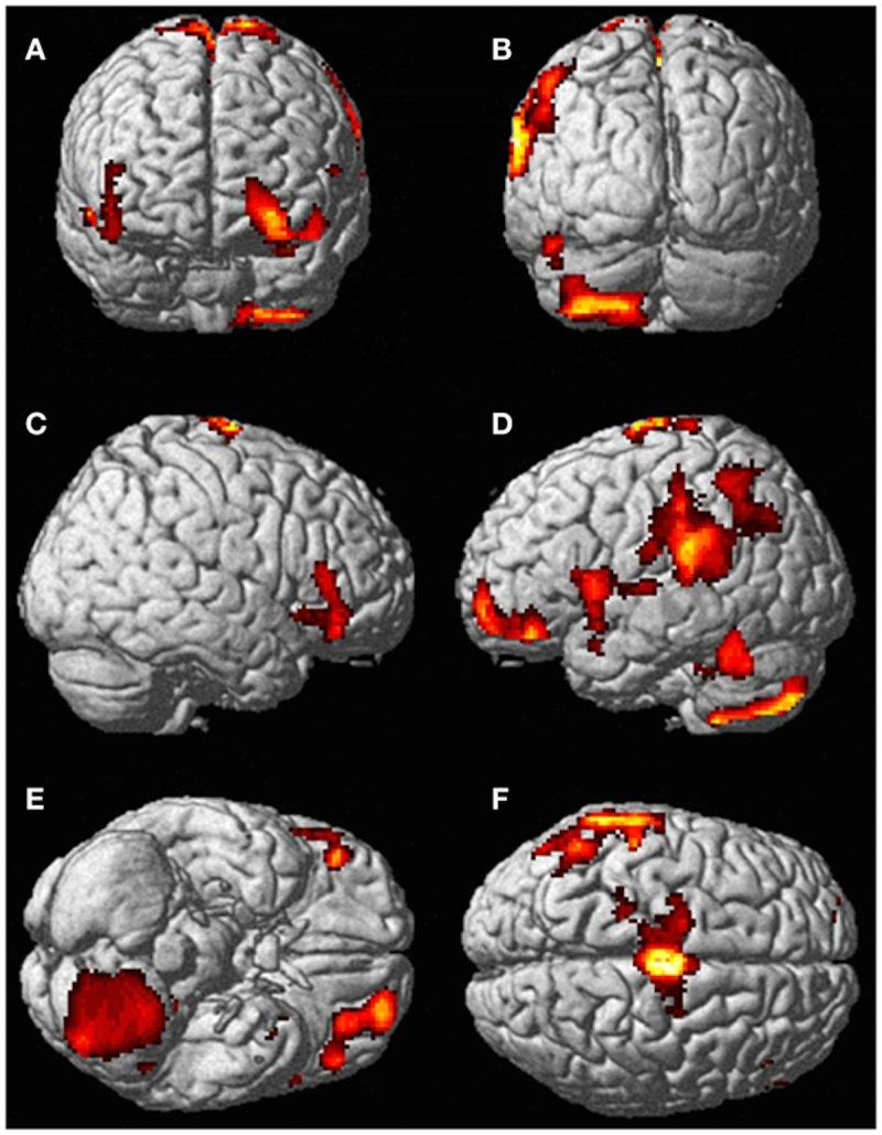 brain scan activated areas