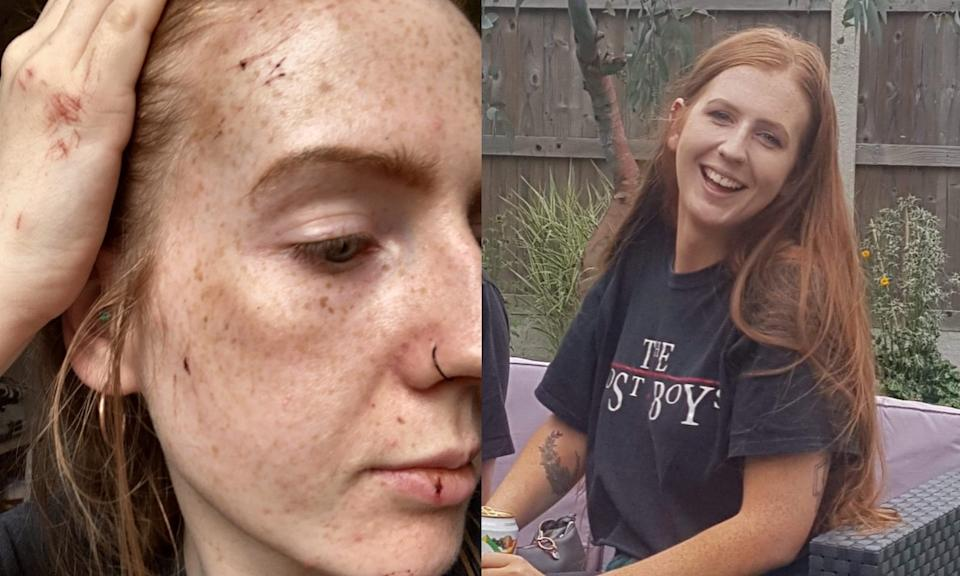 Cait Smith, 23, was attacked while jogging in Essex. (SWNS)