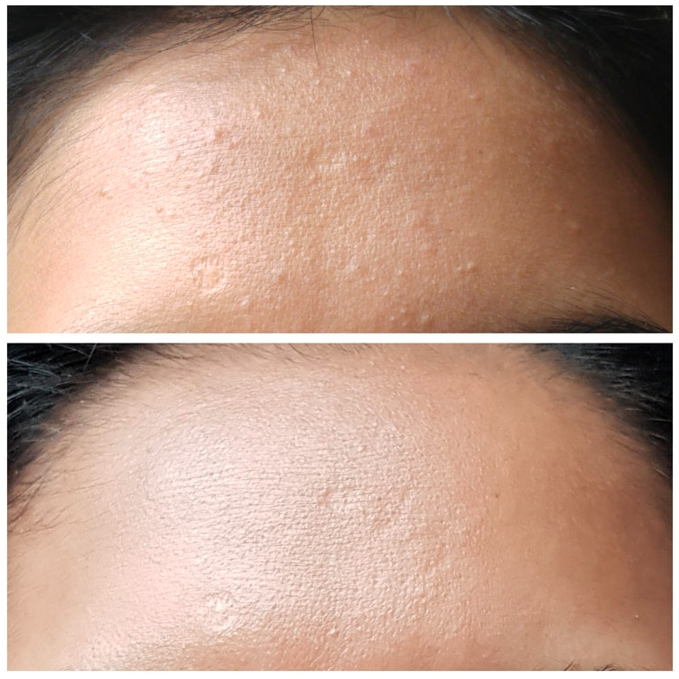 A woman posted this before and after photo on Reddit of her closed comedones. Photo: Reddit