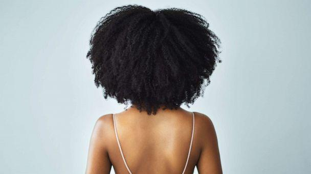 PHOTO: A woman with curly hair is seen in this stock photo. (STOCK PHOTO/Getty Images)