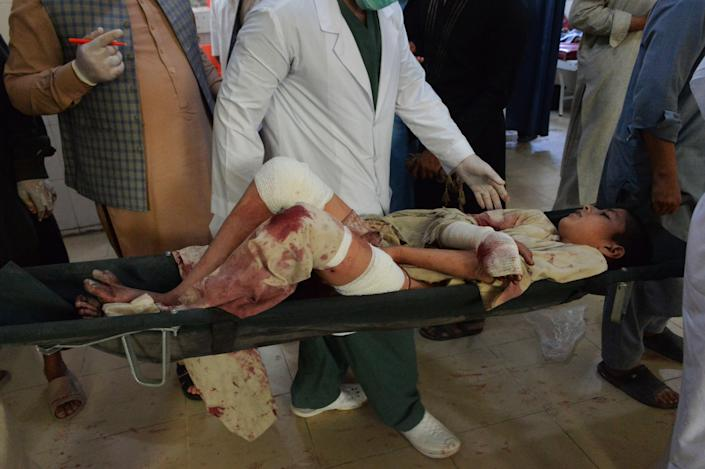 An injured boy is carried in a hospital following a bombing attack on a funeral for a local police commander in Nangarhar, Afghanistan, May 12, 2020. / Credit: NOORULLAH SHIRZADA/AFP/Getty