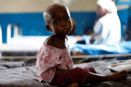 Ntumbabu Kalubi, 4, an internally displaced and severely acute malnourished child waits to receive medical attention at the Tshiamala general referral hospital of Mwene Ditu in Kasai Oriental Province in the Democratic Republic of Congo, March 15, 2018. Picture taken March 15, 2018. REUTERS/Thomas Mukoya