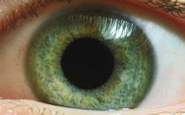 Hundreds of thousands of people worldwide are affected by inherited blindness