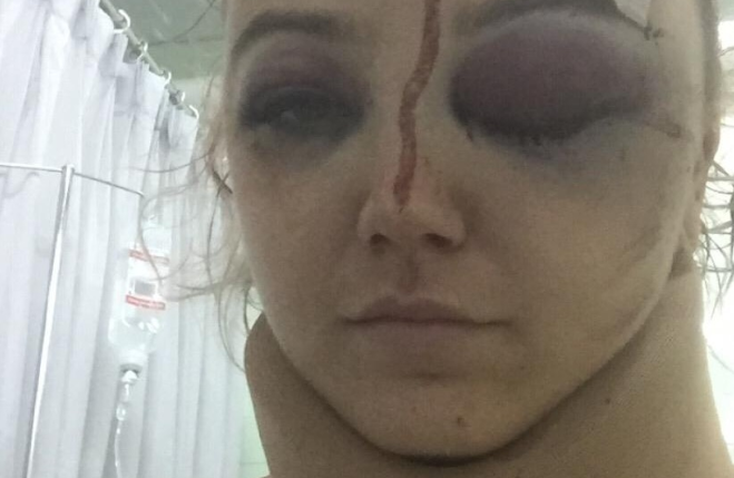 Ms Bell is pictured with two black eyes and blood on her forehead. Source: GoFundMe