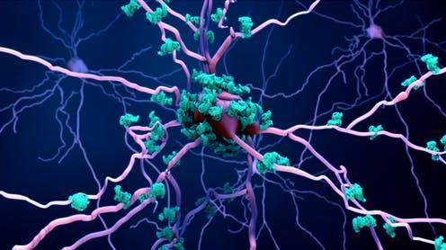 "<span class=""caption"">Amyloid plaques are one cause of Alzheimer's disease.</span> <span class=""attribution""><a class=""link rapid-noclick-resp"" href=""https://www.shutterstock.com/image-illustration/death-neurons-aging-brain-proteins-3d-1492655510"" rel=""nofollow noopener"" target=""_blank"" data-ylk=""slk:Design_Cells/ Shutterstock"">Design_Cells/ Shutterstock</a></span>"