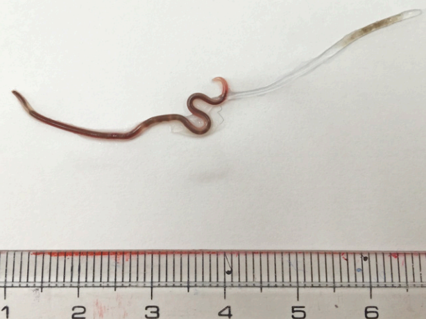 A nematode or roundworm is pictured.