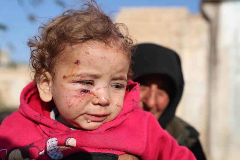 A woman holds an injured girl by last night's Syrian regime bombardment on a makeshift camp in the village of Qah near the Turkish border in the northwestern Idlib province: AFP