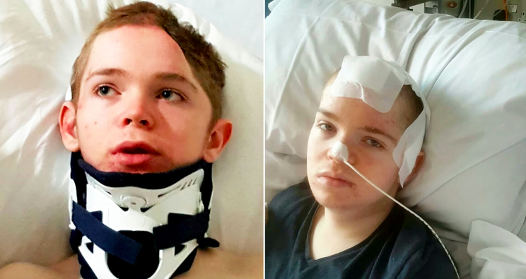 Kiernan Roberts was left with a broken neck and head injuries after being knocked down (SWNS)