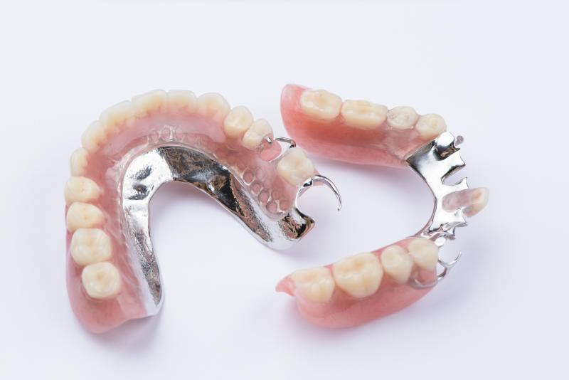 Removable metal partial denture on white background.