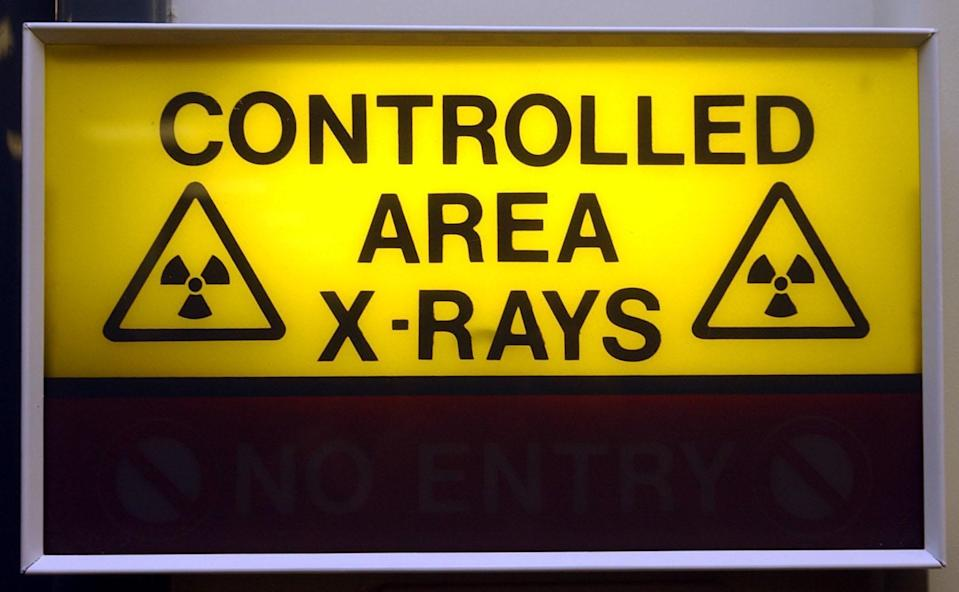 An X-ray sign (PA Archive)
