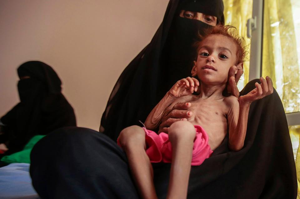 <p>A malnourished child arrives for treatment at the Aslam Health Centre, in Hajjah, Yemen</p> (AP)