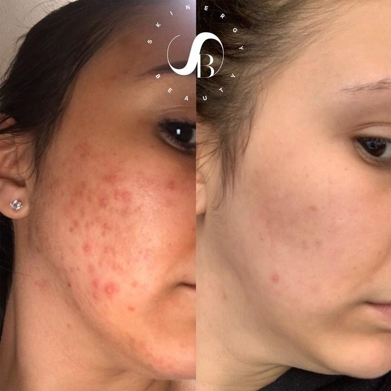 """It'll help tame stubborn acne scars, sun spots and hyperpigmentation.<br /><br /><a href=""""https://go.skimresources.com?id=38395X987171&xs=1&url=https%3A%2F%2Fskinergybeauty.com%2F&xcust=HPBasicBeauty607dad6fe4b0bc5a3a5a7609"""" target=""""_blank"""" rel=""""noopener noreferrer"""">Skinergy Beauty</a> is a Latina-owned business started by Priscilla Jiminian, who struggled to find skin care that catered to skin like hers. After a trip to the Dominican Republic, she entered the skin care industry with the goal of creating products inclusive of all skin types.<br /><br /><strong>Promising review:</strong>""""I suck at not picking my pimples and of course it tends to leave a dark spot.<strong>This cream will seriously work within days! It's truly mind-blowing.</strong>I cannot thank the CEO enough for bringing this cream into my life! I've been using it for years and recommend it to everyone I can. I have yet to hear anyone tell me they hate it."""" —<a href=""""https://go.skimresources.com?id=38395X987171&xs=1&url=https%3A%2F%2Fskinergybeauty.com%2Fcollections%2Fcollection%2Fproducts%2Fdark-spot-correcting-cream&xcust=HPBasicBeauty607dad6fe4b0bc5a3a5a7609"""" target=""""_blank"""" rel=""""nofollow noopener noreferrer"""" data-skimlinks-tracking=""""5909265
