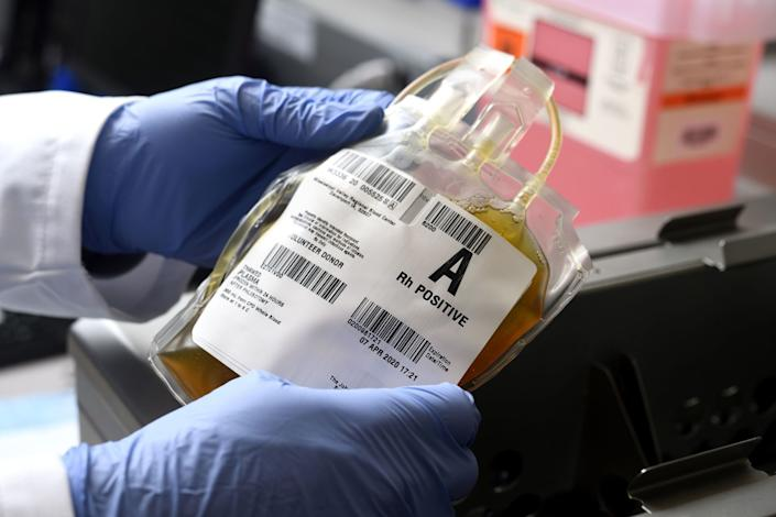 "A thawed bag of donated COVID-19 convalescent plasma in the Johns Hopkins Medicine blood bank. <span class=""copyright"">(Will Kirk / Johns Hopkins University)</span>"