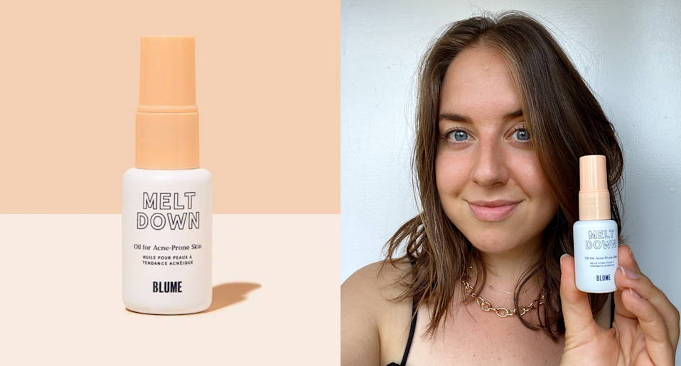 I put Blume's Meltdown Acne Oil to the test — here's my honest review (Photos via Blume & Kayla Kuefler)