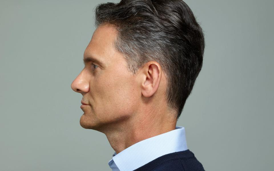 Dr Taktouk added a small amount of filler to Rees's jawline, to give it a stronger appearance - Andrea Zvadova