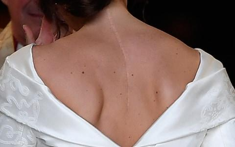 Before the wedding Princess Eugenie said it was important for people to show their scars  - Credit: Toby Melville AFP