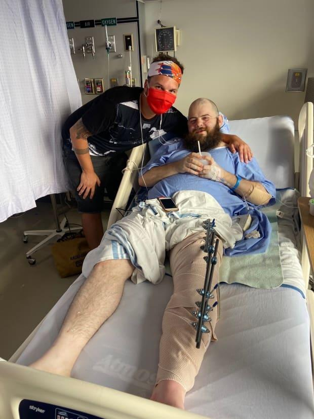 Justin Morissette and his roommate J.D. Burke share a moment after the 33-year-old underwent treatment for a 'snapped' leg. Morissette was injured on Aug. 22 in Vancouver's West End after confronting men amplifying anti-gay speech.