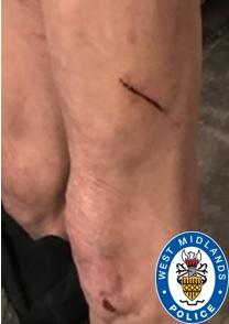 Photos show the victim's injuries as police appeal for information. (West Midlands Police)