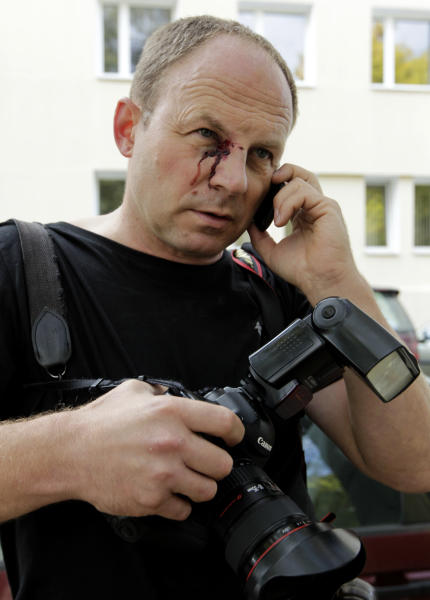 The Associated Press photographer Sergei Grits speaks on the phone, with injuries seen on his face after he was released in Minsk, Tuesday, Sept. 18, 2012. Grits was beaten and briefly detained by plainclothes security officers in the Belarusian capital. Sergei Grits says he was among eight journalists covering a protest by four opposition activists calling for a boycott of this weekend's parliamentary elections when plainclothes security officers attacked them in downtown Minsk. (AP Photo/Vasily Fedosenko, pool)