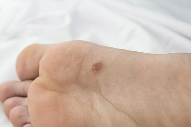foot with problem areas on the skin.close up
