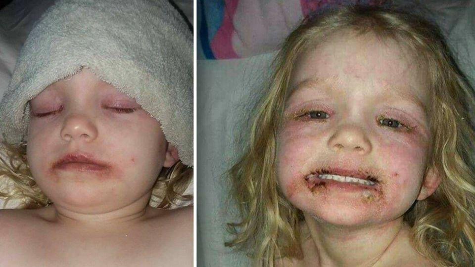 The three-year-old suffered a severe allergic reaction to some cheap make-up. Source: Facebook/Tony Kylie Cravens