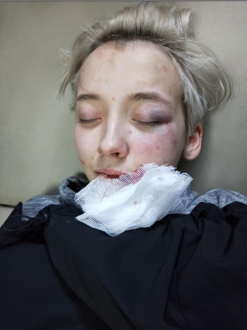 The woman with a bruised eye, and cuts and bruises to her face after she was attacked in Saint Petersburg.