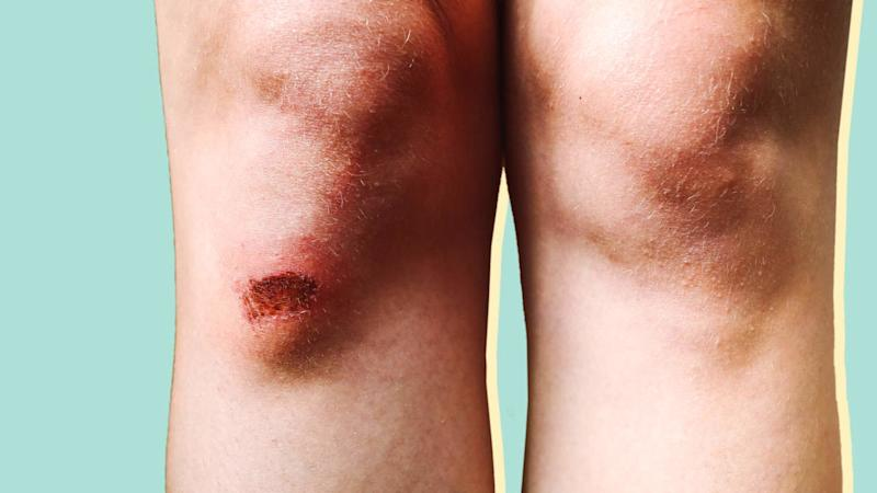 How you can protect yourself from cellulitis