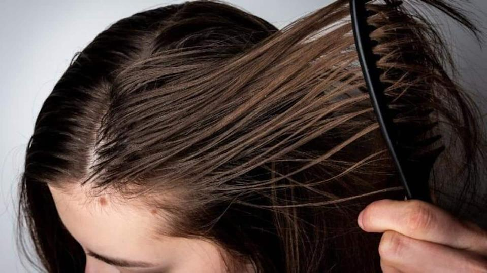 Tips to help you get rid of greasy hair problems