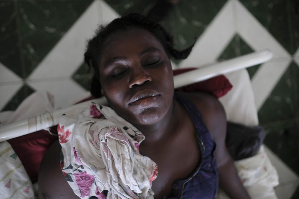 Jertha Ylet rests in a bed at the Immaculate Conception Hospital, also known as the General Hospital of Les Cayes in Les Cayes, Haiti, Monday, Aug. 23, 2021, a week after a 7.2 magnitude earthquake brought down her house in Camp-Perrin. The quake brought down their house in Camp-Perrin, killed her father and two other relatives and seriously injured her brother. (AP Photo/Matias Delacroix)