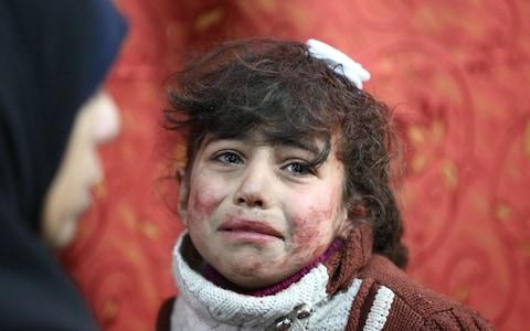 Hala, 9, receives treatment at a makeshift hospital following Syrian government bombardments on rebel-held town of Saqba, in Eastern Ghouta  - Credit: AMER ALMOHIBANY/AFP